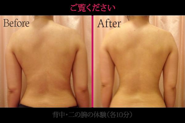 背中・二の腕の体験(10分) Before After